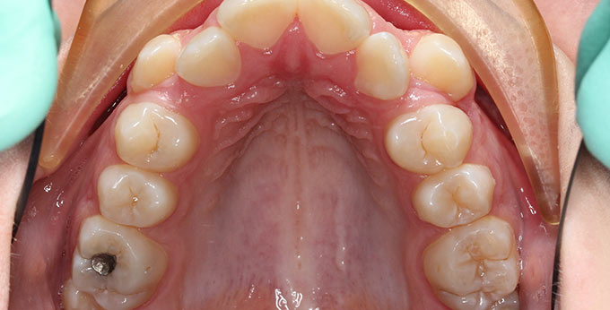 Female upper teeth before treatment for severe dental crowding and misalignment braces required